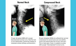 An x-ray of a forward head posture