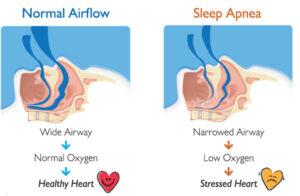 Get checked for sleep apnea