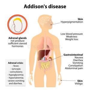 Symptoms of Addison's disease