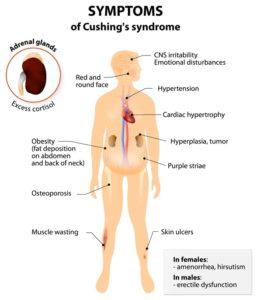 Symptoms of Cushing's syndrome
