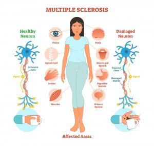 Chiropractor Auckland - Multiple Sclerosis