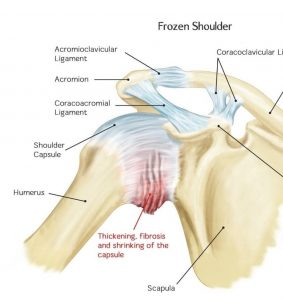 Frozen Shoulder Chiropractic - Chiropractor Auckland