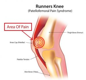 Runner's knee - area of pain