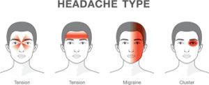 Chiropractor - Migraine