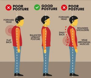A poor vs. good posture