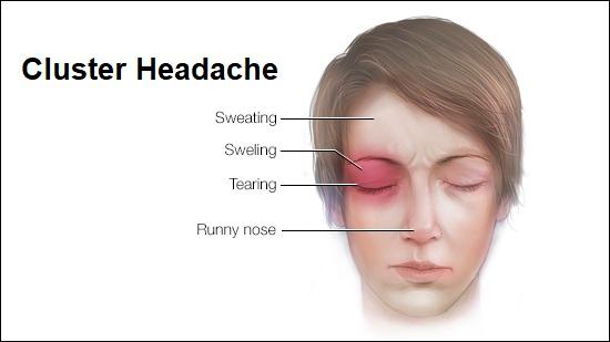 https://revolutionchiro.co.nz/wp-content/uploads/2020/09/Cluster-Headache.png