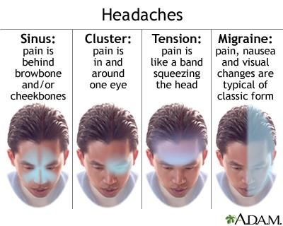 Tension headache 3