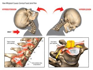Cervical facet syndrome - common causes