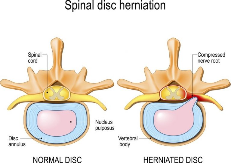 Spinal_Disc_Herniation