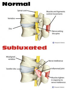A normal vs. subluxated vertebrae