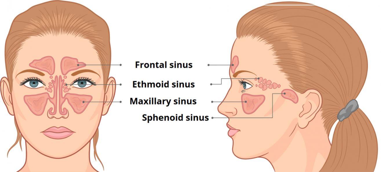 Sinus - Understanding Sinusitis
